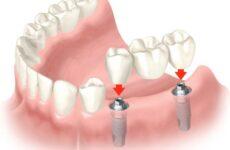Зубні мости на імплантатах – що краще вибрати?