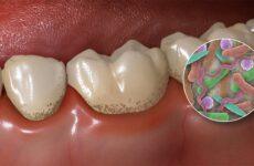 Як відбілити зуби в домашніх умовах: найкращі способи