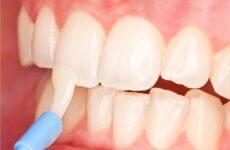 Що таке ремінералізуючий гель для зубів – інструкція по застосуванню