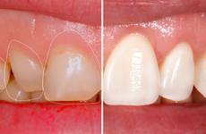 Нарощування зубів: що це таке і як відбувається нарощування