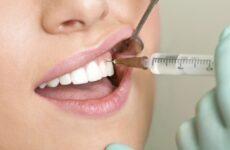 Через скільки проходить анестезія після лікування зуба: думка експертів