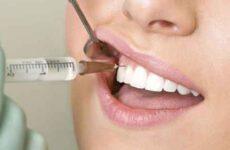 Видалення зубів під загальним наркозом: відгуки пацієнтів