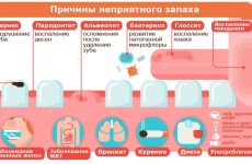 Гнильний запах з рота: причини виникнення та способи лікування