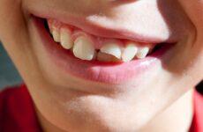 Відколовся передній молочний зуб у дитини – перша допомога