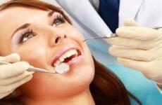 Що таке санація зубів: доцільність процедури