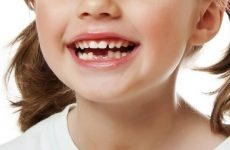 Як відрізнити молочний зуб від корінного: фото та опис