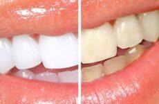 Чим відбілити зуби в домашніх умовах: кращі методи і засоби