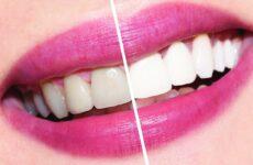 Відбілююча зубна паста – яка з них краще, рейтинг серед стоматологів