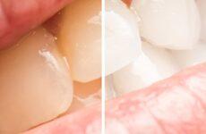 Як відбілити зуби натуральними засобами: найбільш ефективні способи