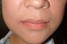 Набряк після імплантації зубів: як зняти і що робити?