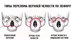 Перелом верхньої щелепи: симптоми, методи діагностики та лікування