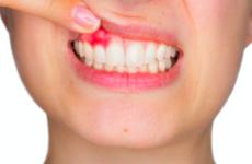 Червоні ясна: причини, симптоми і способи лікування
