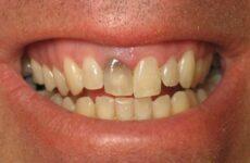 Як відбілити зуби за допомогою лимона – ефективні способи відбілювання зубної емалі