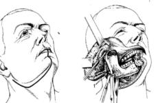 Резекція верхньої і нижньої щелепи: опис операції