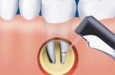 Резекція верхівки кореня зуба: показання до проведення операції