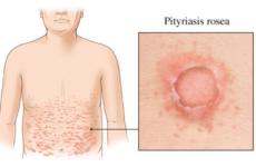 Симптоми і ознаки рожевого лишаю жибера