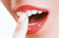 Що робити, якщо почали хитатися зуби у дорослих: причини і лікування