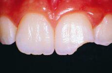 Відколовся шматочок зуба: причини, лікування та можливі ускладнення