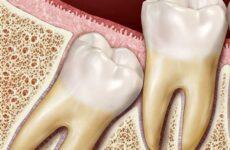 Що таке складне видалення зуба: показання та протипоказання до проведення