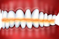 Патологічна стертість зубів – причини появи та методи лікування