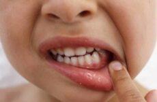 Як швидко вилікувати стоматит у дитини: медичні і народні засоби