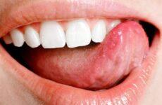 Стоматит на мові: перевірені способи лікування