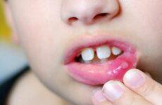 Чому у дитини часто виникає стоматит?