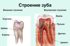 Що робити, якщо болить ясна над зубом при натисканні на неї