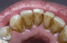 Чорний наліт на зубах: причини появи та методи лікування у дорослих