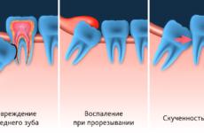 Ретинированный зуб: причини, симптоми і методи діагностики