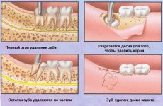 Що таке видалення ретинированного зуба – особливості проведення процедури