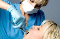 Чим можна обробити десну після видалення зуба – мазі, полоскання