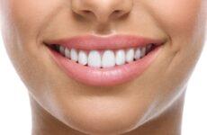 Як відбілити зуби: основні методи, народні та медичні засоби