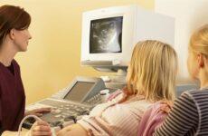 Чи шкідливо для плоду УЗД при вагітності? Скільки разів і як часто це робити, є чи немає вплив на дитину