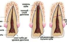 Перелом зуба: причини, симптоми і методи ефективного лікування