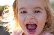 Порядок прорізування зубів у дітей: терміни і послідовність