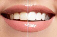Зубний наліт – як позбутися в домашніх умовах і ефективно очистити зуби