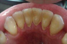 Зубний камінь: причини виникнення, профілактика і способи видалення зубного каменю