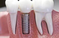 Як довго приживаються зубні імпланти: процес відновлення тканин