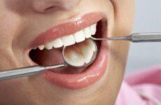 Як зміцнити зуби і ясна: ефективні методи