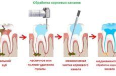 Видалення нерва зуба – причини і методи проведення процедури