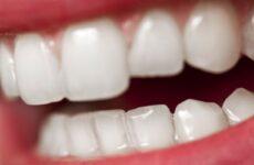 Можна відбілити зуби з пломбами на передніх зубах: відгуки стоматологів