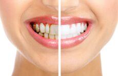Чому псуються зуби – причини і методи зміцнення