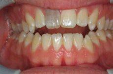 Мертвий зуб – що це значить, скільки живе він без нерва і чому темніє