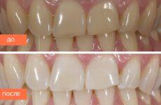 Фторування зубів: що це таке і навіщо потрібна дана процедура?