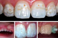 Що таке фторування зубів у дітей: мета і сутність проведення процедури