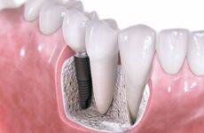 Які зубні протези краще поставити: поради фахівців