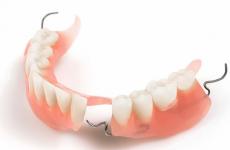 Догляд за зубними протезами з пластмаси на гачках: правила чищення та харчування