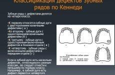 Класифікація дефектів зубних рядів