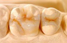 Мікропротезування зубів: показання та протипоказання, етапи процедури